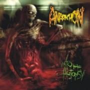 ANARKHON -CD- Into the Autopsy