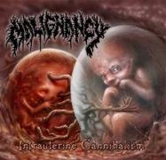 MALIGNANCY - 2 CD -  Intrauterine Cannibalism