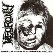 NECRONY -2CD- under the severe mucu-purulent pustule