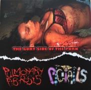 PULMONARY FIBROSIS / PIGTAILS - Cardboard split CD -