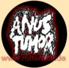 ANUS TUMOR - Button/Badge/Pin (18)